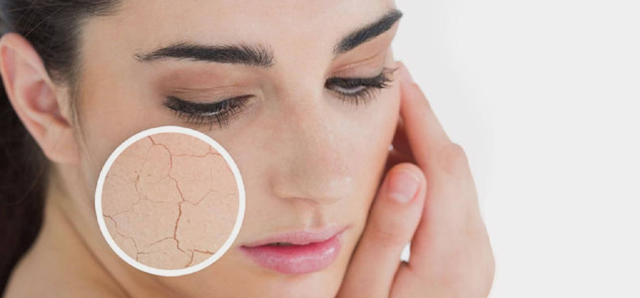 How to care dry skin.