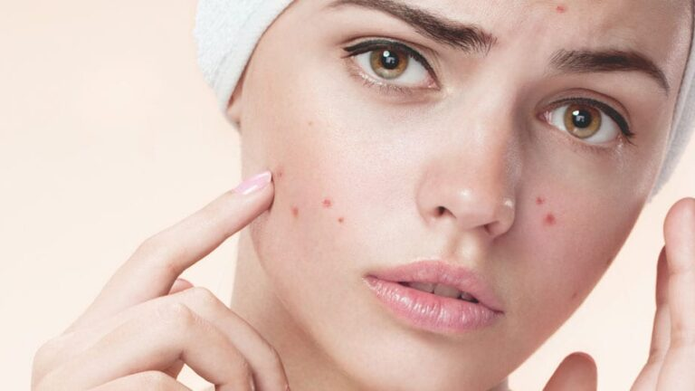 Homemade face pack to get acne-free blemish-free skin